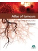 Atlas of tumours. Oncology in daily clinical practice