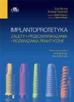 Implantoprotetyka. Zalety. Przeciwwskazania. Rozwiązania praktyczne