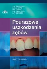 Pourazowe uszkodzenia zębów wyd.II