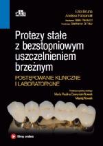 Protezy stałe z bezstopniowym uszczelnieniem brzeżnym. Postępowanie kliniczne i laboratoryjne