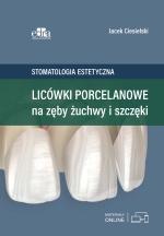 Stomatologia estetyczna. Licówki porcelanowe na zęby żuchwy i szczęki